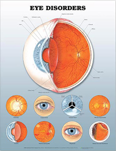 Eye Disorders  3D Lenticular Chart