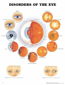 Disorders of the Eye   Laminated Chart  (Size: 20
