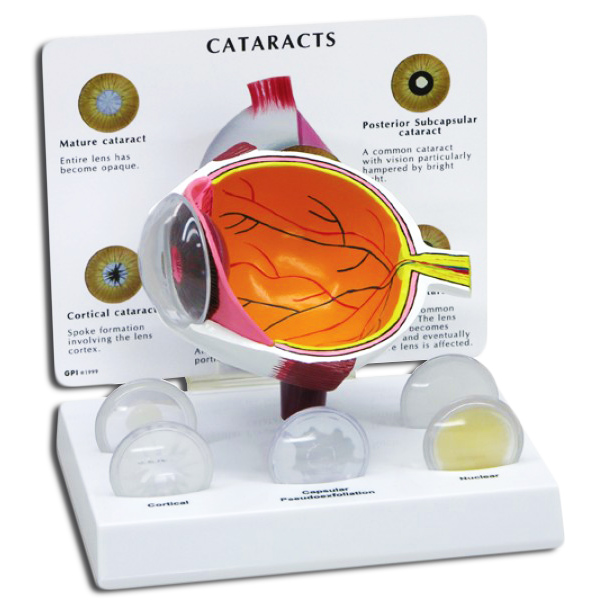 Eye Model with Cataracts